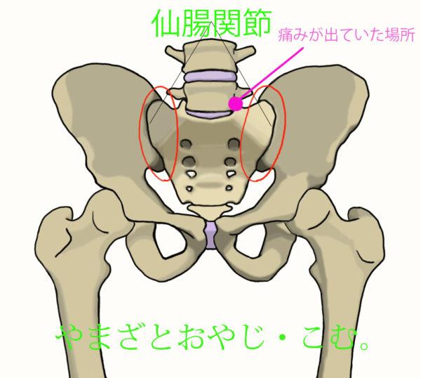 いたみ仙腸関節